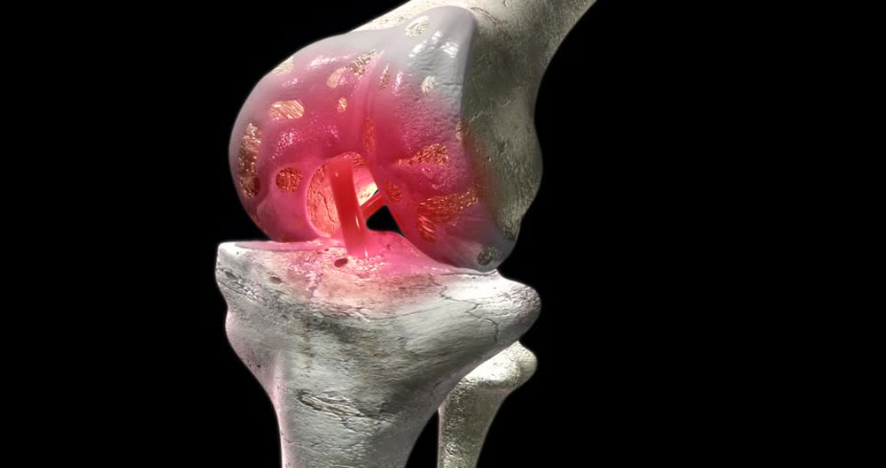 238340784-hyaline-cartilage-arthritis-fibula-shinbone