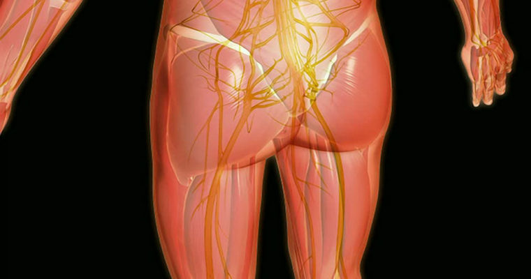 887812885-sciatic-nerve-thigh-full-body-abstract