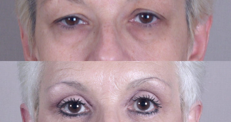 Eyelid-Surgery-Before-After-3