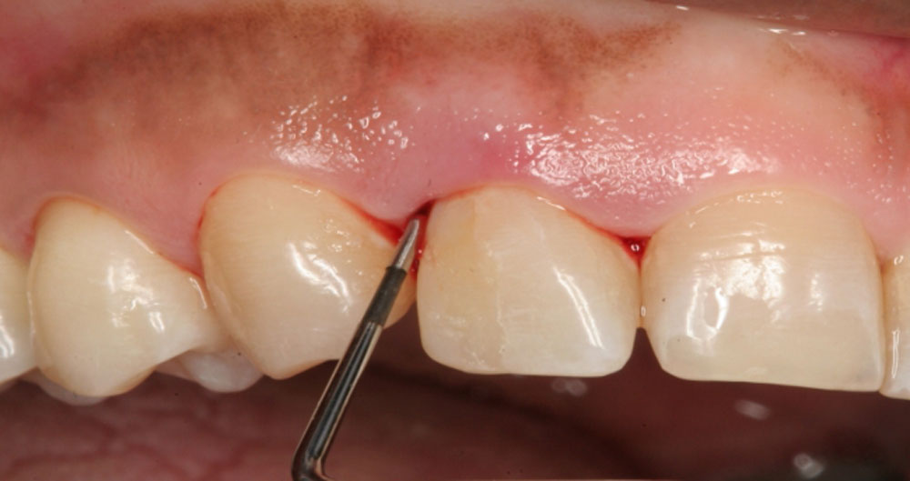 Periodontal-Disease-Due-To-Lack-Of-Vitamin-D