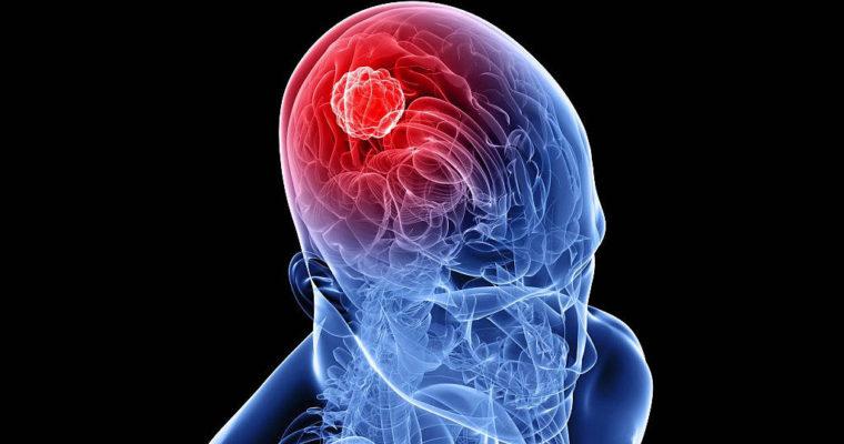 World-Brain-Tumor-Day3