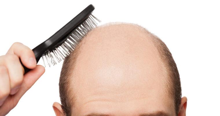 hair-loss-11