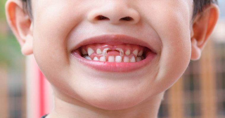 optimal-fluoride-level-in-drinking-water-to-prevent-tooth-decay
