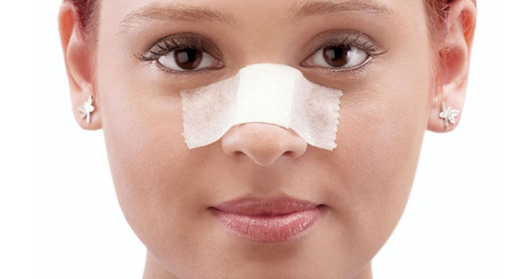 rhinoplasty-swelling-nose-after-nose-surgery